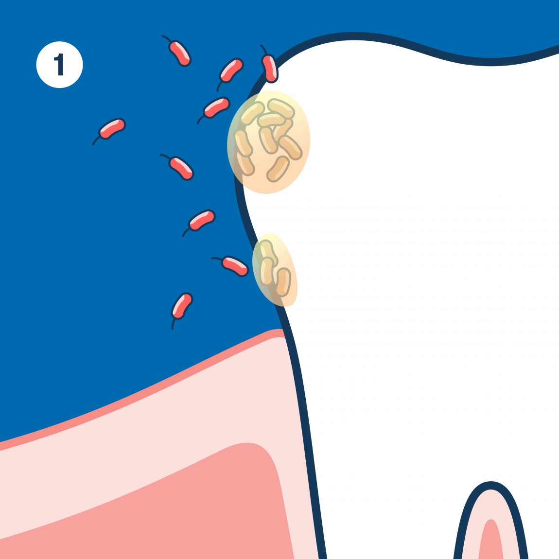 First stage of dental plaque. Bacteria in your mouth attach to tooth.