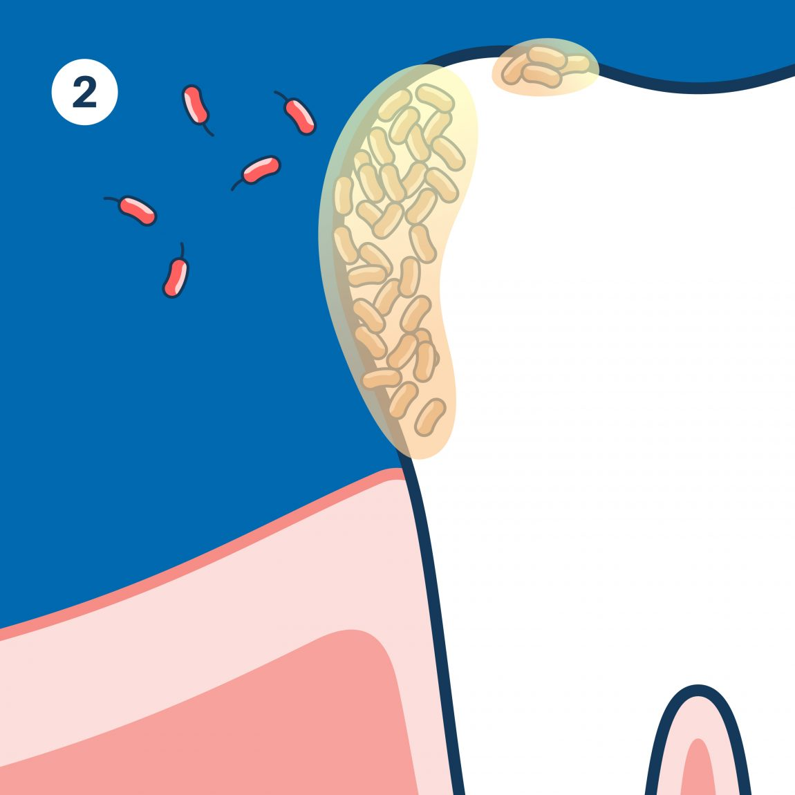 Second stage of dental plaque. Bacteria create mild protective environment on the tooth's surface.