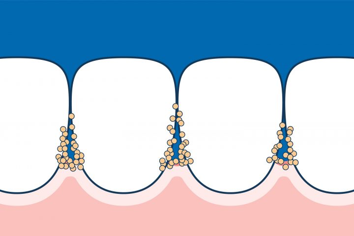 Bacteria accumulates in interdental spaces and can cause tooth decay.